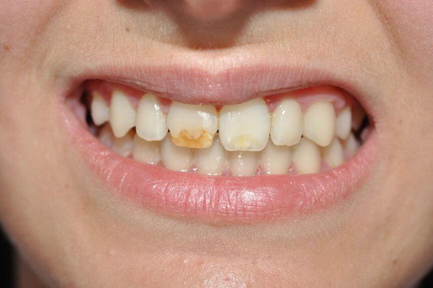 clinica dental valencia