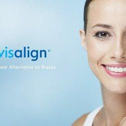 ortodoncia adultos invisalign valencia